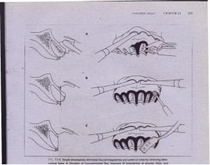 FIG. 13-6 Simple alveoloplasty eliminates buccal irregularities and undercut areas by removing labiocortical bone. A. Elevation of mucoperiosteal flap, exposure of irregularities of alveolar ridge, and . removal of gros~ irregularity with rongeur. B, Bone bur in rotating handpiece can also be used to remove bone and smooth labiocortical surface. C, Use of bone file to smooth irregularities and achieve