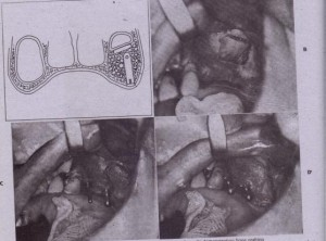 FIG. '13-37 Si~us lift procedure. A, Cross-sectional diagram of maxilla demonstrating bone grafting to the sinus floor. On the Left side of the diagram, the sinus extending into the alveolar ridge area, which results in sufficient bone for implant placement. On the right side the lateral wall of the maxilla has been fractured inward, bone grafted in the inferior portion of the sinus, and an implant placed into the sinus floor graft. B to 0, Clinical photographs showing sinus opening, placement of implants, and bone graft to fill inferior portion of sinus