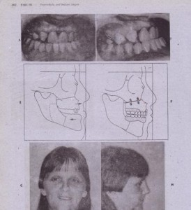 FIG. 13-4S-cont'd I ana J, Postoperative photograph showing result after proper construction of upper partial and lower full denture. K, Dashed lines (preoperative) and solid lines (postoperative) superimposed cephalometric tracings.