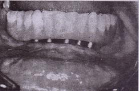 tlG. 14-1 Complete-arch implant restoration supported by five implants-in completely edentulous patient