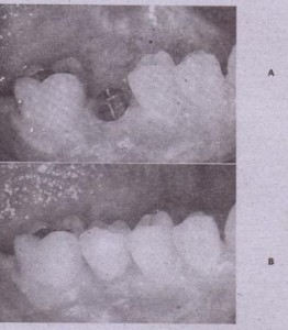 FIG. 14-4 A, Thirty-year-old patient with missing mandibular premolar. Sinqle dental implant has been placed in extraction site. Abutment projects througb soft tissue. 8, Single-tooth implant restored without comprornlsinq adjacent tooth structure.