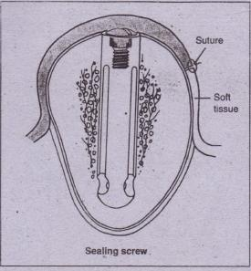 FIG. 14-12 Diagram of sealing screw in place during initial implant healing phase. Soft tissue is.sutured over implant. Removable prosthesis can be worn over this area during this period.