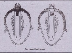 FIG. 1'4-13 Healing cap that screws directly into implant (left). This type may be called the healing abutment in some systems. Healing cap scre.ws into abutment (right). Both types allow for soft tissue healing after stage II surgery.