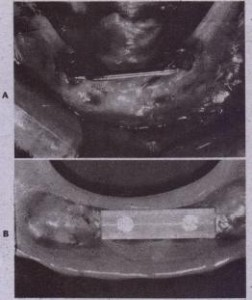 FIG. 14-2Q A, Two mandibular implants tonnected by gold bar. B, Plastic clip fabricated within denture a'l'Jddesigned to snap onto' single gold bar (A) to help support and rFIG. 14-2Q A, Two mandibular implants tonnected by gold bar. B, Plastic clip fabricated within denture a'l'Jddesigned to snap onto' single gold bar (A) to help support and retain dentureetain denture.