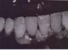 FIG. 14-28 Conventional crown is cemented over fixed implant abutment. Temporary cement can be used to maintain retrievability.