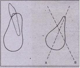FIG. 14-34 After tooth loss, angulation of bony ridge changes as . resorption OCCl:r5. Tooth had labial inclination (A) at tim.e of extraction, and remaining bone will best support implant at significantly different angulation (B). Care must be taken in treatment planning to . assess importance of this type of resorption' on implant placement.