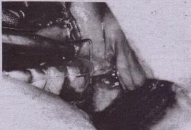 FIG. 14-47 Access is gained to bone, and periodontal probe is placed through guide hole of splint and locates ideal implant position.