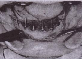 FIG. 14-49 Paralleling pins are placed in each hole a~er it is drilled; they help to direct angulation of adjacent hole-This position aids-in producing parallelism between multiple implants .•