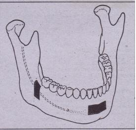 FIG. 14-60 Graft sites from the genial region or tram the buccal shelf.