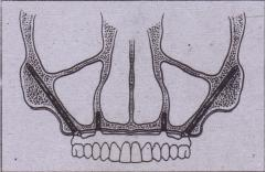 FIG. 14-67 The Zygomaticus implant, placed along with a minimum of two conventional implants illthe anterior maxHla, will allow . fabrication of an implant-supported maxillary denture without the· need for sinus lift