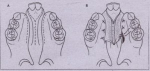 FIG. 27-12 VornerIlap technique for closure of hard palate cleft (bilateral in this case). A;lncisions through nasal mucosa on underside of nasal septum (i.e., vomer) and mucosa of cleft marqlns. B, Mucosa of nasal septum is dissected off nasal septum and inserted under palatal mucosa at margins of cleft. This is one-layer nasal closure orily. Connective tissue undersurface of nasal mucosa will epithelialize. This technique, because it does not require.extensfve elevation of palatal mucoperiosteum, produces less scarrtriq with attendant FIG. 27-12 VornerIlap technique for closure of hard palate cleft (bilateral in this case). A;lncisions through nasal mucosa on underside of nasal septum (i.e., vomer) and mucosa of cleft marqlns. B, Mucosa of nasal septum is dissected off nasal septum and inserted under palatal mucosa at margins of cleft. This is one-layer nasal closure orily. Connective tissue undersurface of nasal mucosa will epithelialize. This technique, because it does not require.extensfve elevation of palatal mucoperiosteum, produces less scarrtriq with attendant growth restriction.growth restriction.