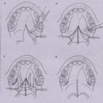 Correction of Maxillomandibular Disharmonies