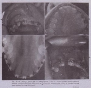 FIG. 27 -1 S Labial (A), palatal, (8) and radiographic (C) views of a patent unilateral alveolar cleft that extends posteriorly along the hard palate. D, ~hotograph shows surgical closure of the nasal mucosa with inversion into the nasal cavity.FIG. 27 -1 S Labial (A), palatal, (8) and radiographic (C) views of a patent unilateral alveolar cleft that extends posteriorly along the hard palate. D, ~hotograph shows surgical closure of the nasal mucosa with inversion into the nasal cavity.