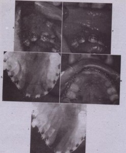 FIG. 27·15 . CCI1C rl E, Particulate bone graft is placed into the defect F, Closure of the palatal and labial mucosa over the bone graf;. G, Radiographic result is demonstrated 3 days after surgery. H, Three months later the soft tissues have healed. I, Radiograph shows consolidation of the bone graft.FIG. 27·15 . CCI1C rl E, Particulate bone graft is placed into the defect F, Closure of the palatal and labial mucosa over the bone graf;. G, Radiographic result is demonstrated 3 days after surgery. H, Three months later the soft tissues have healed. I, Radiograph shows consolidation of the bone graft.