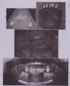 FIG. 28-1 The use of autoqenous block corucoc ancellous-bone graft to replace defect in mandibular symphysis. This patient had an ameloblastoma of the anterior mandible. A, Computed tomography (CT) scan showing expansion and irregularity of bone. B, Specimen that was resected using an intraoral approach. C, Bone fJ:ate used to span the resection gap, controlling the position of the right and left mandibular halves and allowing the patient to function postoperatively without th~ need for maxillomandibular fixation. D, Panoramic radiograph taken immediately after resection. Three months later the oral soft tissues have healed and the patient IS prepared for bone graft reconstruction of the symphysis.