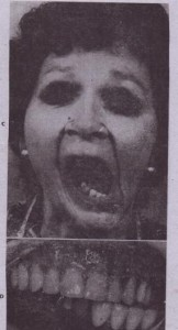 FIG. 28-3-cont'd C, Maximum opening of mouth shows gross deviation to resected side. D, Intraoral photograph showing' the crossbite relationship from the deviation of the mandible to the left side.