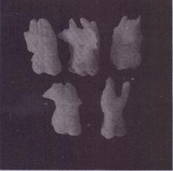 FIG. 11-7 Forcepsextraction of these teeth resulted inremoval of bone and tooth instead of just tooth.