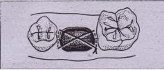 FIG. 11-11 A figure-of-eight stitch is usually performed to help maintain piece of oxidized cellulose in tooth socket.