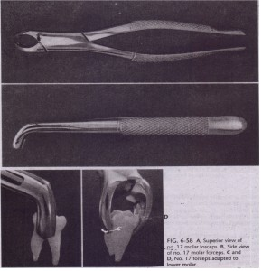 A, Superior view of no. 1 7 molar forceps. ·B, Side view -;;[ no. 17 molar forceps. C and 0, No. 17 forceps adapted to lower molar .