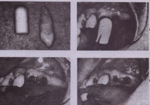 FIG. 11-14 A, Collagen shaped into the. form of a plug is similar in size to the root of a maxillary canine. Band C, The collagen plug is placed into the socket with cotton pliers (arrow). D, A figureeight suture isplaced over the socket to maintain the collagen in the socket.