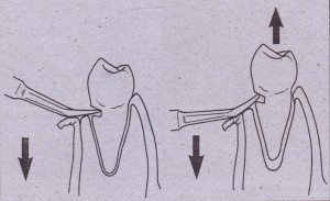 Initial implant stability can be aided if implant can e two cortical plates o~!:;