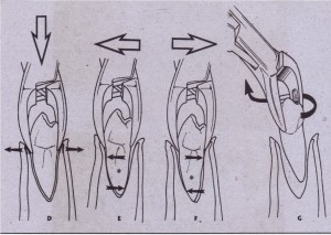 0, Forceps is seAted apically as far as possible to displace center of rotation and to begin expansion of crestal bone. E. Buccal forceps is applied to begin luxation process. F, Slight lingual pressure is used. G, Tooth is delivered with rotational, tractional force.