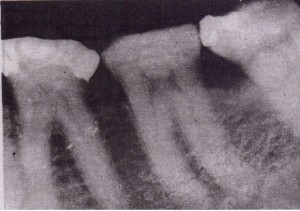 Teeth that exhibit evidence of bruxism may have denser bone and stronger periodontal ligament attachment, which make them more difficult tc extract