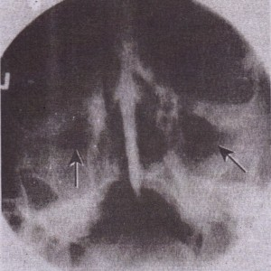 FIG. 19-9 Waters' radiograph showing air-fluid levelin left maxillary sinus and mucosal thickening in right maxillary sinus (arrows)