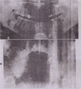 FIG. 19-10 A, Panoramic radiograph shows large odontc:,enic keratocyst associated with impacted right maxillary third molar tooth (arrow). Cyst has impinged on right maxillary sinus as it expanded. Sinus cavity is almost totally obstructed by les.cn, Another odontogenic keratocyst is seen associated with impacted right mandibular third molar, B, Waters' radioqraph demonstrates the odontogenic keratocyst (seen In A). Lesion is ?.'.c seen to have expanded lateral wall of right maxillary sinus