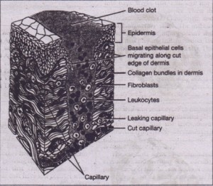 FIG. 4-2 I~mmatory (lag) stage of wound repair. Wound fills with clotted blood, inflammatory cells, and plasma. Adjacent epithelium begins to migrate into wound, and undifferentiated mesenchymal cells begin to transform into fibrobla~ts. (Copyright 7977 and J 987. Icon Learning Systems. Reprinted with permission from the Oinical Symposia, vol. 2~/3 illustrated by John A Craig, 1.40, and vol 22/2 illustrated by Frank H. Netter, MD. All rights reserved