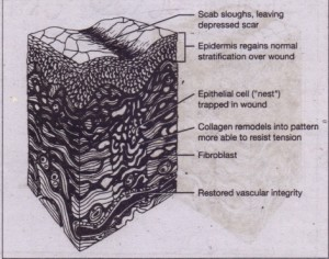 FIG. +5 Remodeling stage of wound repair. Epithelial stratification is restored, collagen is remodeled into more 'efficiently, organized patterns, fibroblasts'slowly disappear, and vascular integrity is reestablished. (Copyright 1977 and 1981. Icon Learning Systems. 'Reprinted with permission from the Clinical Symposiq, vol, 29/3 illustrated by John A. Craig, MD, and vol 22/2 illustrated by Frank H. Netter, MD. An rights reserved
