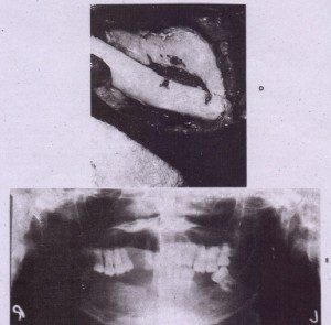 FIG. 22-9-cont'd D, Extraoral exposure and placement of bone graft to reconstruct mandibular ~Iveolus. E, Radiographic appearance immediately after graft placement.