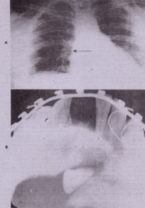 FIG. 23-5 Teeth displaced into abnormal locations. A, Chest radiograph showing maxillary canine tooth in. right main st~m bronchus after traumatic displacement. 8, Incisor tooth in line of fracture after reduction
