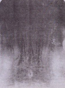 FIG. 23-7 Radiograph showing widened periodontal