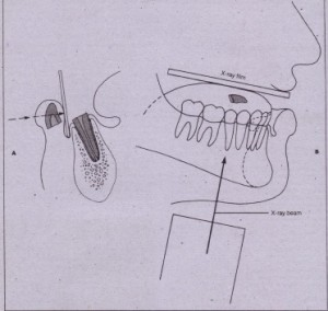 FIG. 23-8 Radiographic technique to detect foreign bodies within lip (A) and tongue.(B). The clinician should use one half to one third of normal exposure for soft tissue radioqraphy