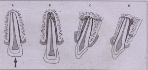 FIG. 23-13 Tooth displacement. _A, Intruded tooth. The absence of periodontal ligament space along apex is demonstrated. B, Tooth displaced from its socket in coronal direction (i.e., extruded). C and D, Displacement of incisor tooth crown buccally and IinglJally, respectively. Associated alveolar wall fractures, which are frequently present, are visualized.