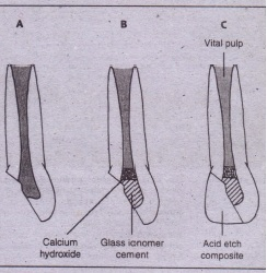 FIG. 23-14 Pulpotomy technique. A, Apically immature tooth with coronal (racttJreinvolving pulp. B, Coronal pulp removed aseptically, after which calcium hydroxide solution is applied over exposed pulp. Glass ionomer cement can then be used to fill remainder of coronal pulp chamber, and temporary or permanent (i.e., composite) filling is placed (C).