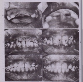 FIG. 23-15 Treatment of intruded maxillary incisorswith immature apices. 8uccal (A) and palatal (8) views of intruded maxillary incisor teeth. C, Orthodontic traction instituted to extrude teeth a few weeks after traumatic episode. D, Appearance after 6 weeks of traction. £, Stabilization of teeth after orthodontic-guided reeruption with acid-etch technique for 11 weeks. F,Appearance after 1 year. This patient had calcium hydroxide pulpectomies and apexification during period of orthodontic extrusion and subsequently had root canals. (From Spalding PM et al: The changing role of endodontics and orthodontics in tfle manaqernent of traumatically intruded permanent incisors, Pediatr Dent 7:104, 1985.)