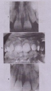 FIG.23-17-cont'd F,Radiograph of tooth after removal of stabilizing appliance. G, Appearance of tooth 1 year after trauma. H, Radiograph of tooth 1 year after trauma. No root canal treatment was performed because of immature nature of apex at time of displacement. (Courtesy Dr. Peter Spalding, University of Nebraska, llncoln.)