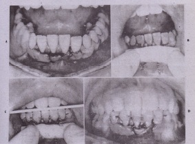 FIG. 23-18 Technique of acid-etch composite stabil' ation of displaced teeth. A, Lower incisor teeth displaced lingually. 8, After digital repositioning, acid is applied to facial surfaces of displaced incisors and one or two teeth on each side after isolation and drying. C, Composite material and wire applied. 0, Occlusion checked during.and after stabiliza