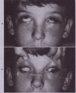 F!G. 24-4 A, 14-year-old patient with a left orbital floor fracture in upward gaze. B, Entrapment of inferior rectus muscle is the result of impingement in area of linear orbital floor fracture. In down gaze, patient is unable to rotate the left eye inferiorly