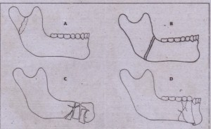 FIG. 24-12 Types of mandible fractures classified according to extent of injury in area of fracture site. A, C-eenstick; 8, simple; C, comminuted; and D, compound.