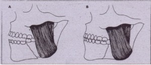 FIG, 24-13 .Favorable and unfavorable fractures of mandible, A, Unfavorable fractures result4ng in displacement at fracture site caused by pull of masseter muscle. B, Favorable fracture in which direction of fracture 'and angulation of muscle pull resists displacement ..
