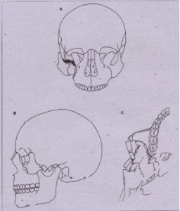 FIG. 24-15 A, Zygomatic complex fracture. B, Lateral view. Isolated zygomatic arch fracture. C, Submental vertex view. (A and C modified from Kruger E, Schilli W: orar and maxillofacial traumatology, vol 1, Chicago, 1982, Quintessence.)