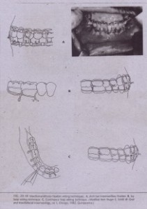 FIG 24-18