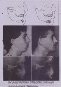 Maxillary and Midface Deficiency