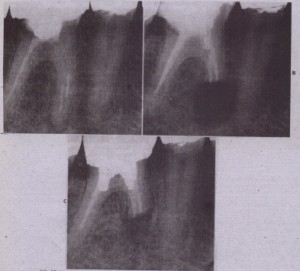 FIG. 17-6 A, Irretrievable separated instruments in mesial canals, B, After complete obturation, root is resected to level or obturation and to include files, C, Bone regeneration is occurring apically, but additional monitoring is necessary.