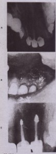 FIG. 17-10 Decompression of large lesion. 'A, Extensive periradicular lesion failed to resolve. Coronal leakage in either treated tooth is possible. a, Surgical opening is created to defect; polyethylene tube extends into lesion to promote drainage, C, After partial resolution, root end res:ction and filling ~ith amalgam are performed.