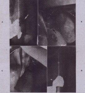 FIG. 17-26 External resorption repair. A, Mesially angled radiograph shows defect (arrow) to be lingual. B, After flap reflection, crestal bone. reduction, and rubber dam isolation, defect is prepared (arrow). Margins must be in sound tooth structure. C, Cavity is filled with amalgam and flap apically . positioned. 0, Long-term radiographiG and clinical evaluation is necessary; at times, resorption recurs.