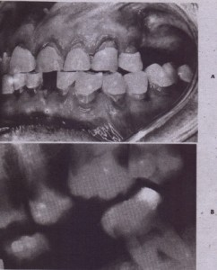 FIG. 18-1' A, Typical 'clinical appearance of radiation caries, 8, Typical radiographic appearance of radiation caries, Note the erosion around the cervical portion of the teeth